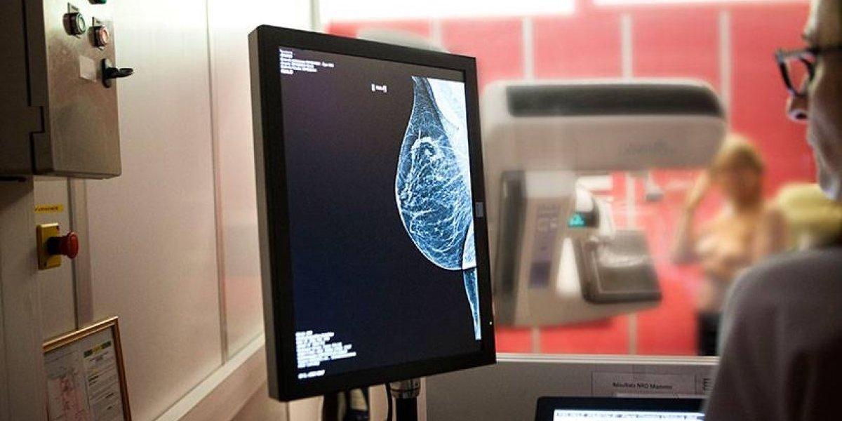 Minsal ampliará el acceso a mamografías a lo largo del país