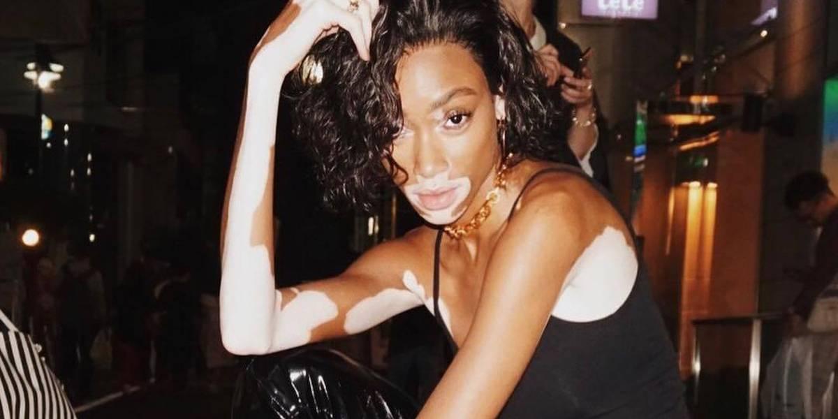 Winnie Harlow, a modelo com vitiligo que hoje brilha no Victoria's Secret Fashion Show