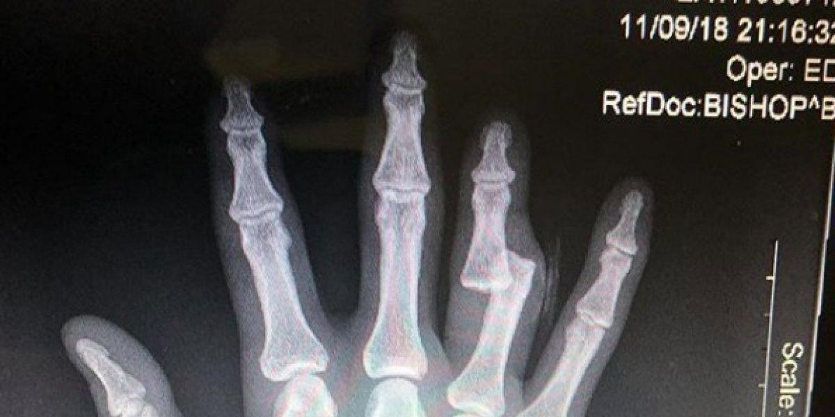 Peleador de MMA gana su pelea con todo y fractura expuesta en la mano