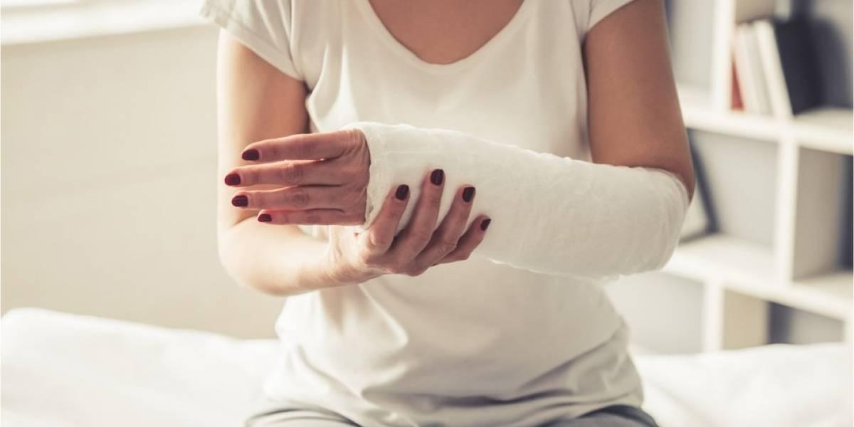 5 mitos comunes sobre fracturas de huesos y por qué no son ciertos