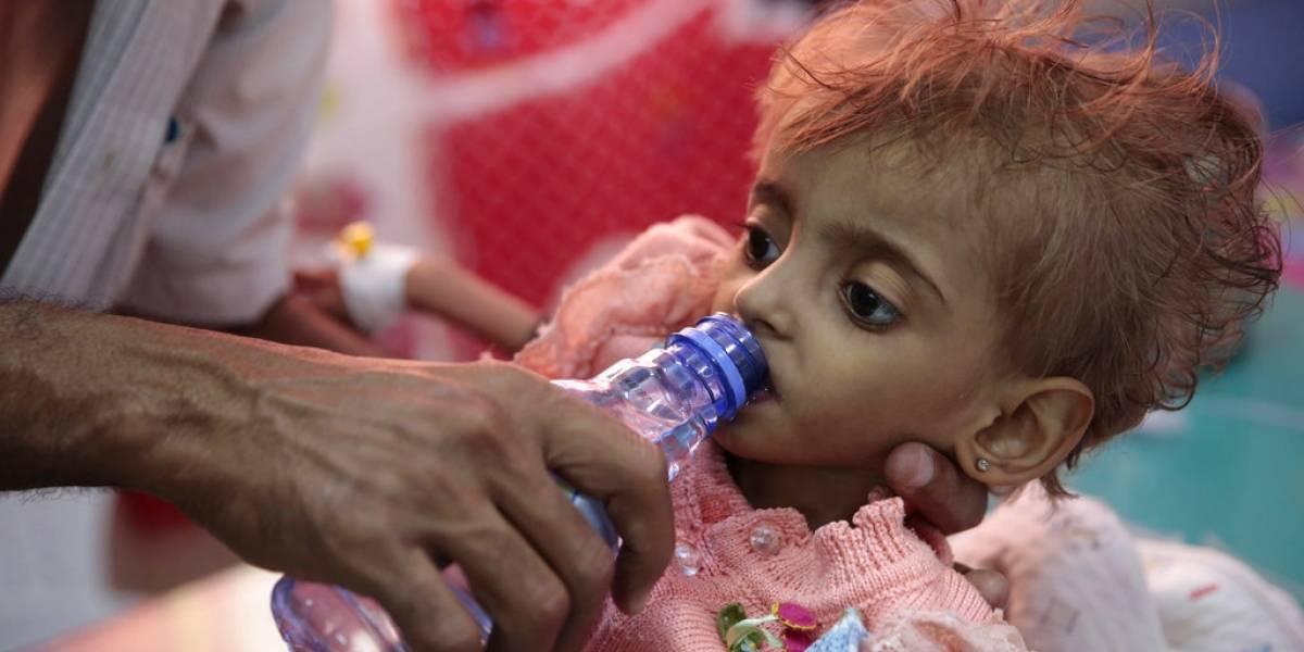 La peor crisis humanitaria del planeta: más de 85 mil niños menores de 5 años han muerto de hambre en Yemen