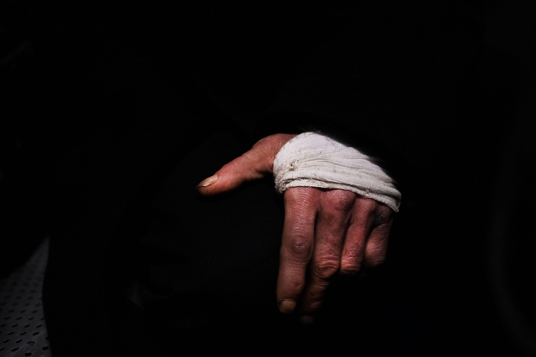 Tu cuerpo sana las heridas más rápido durante el día que por la noche