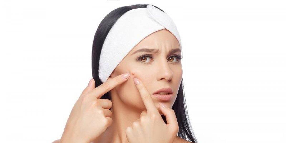 Aprenda a combatir el acné después de los 30