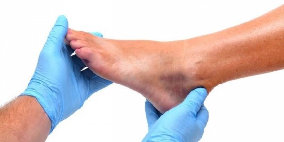 La alternativa tapatía para tratar el pie diabético