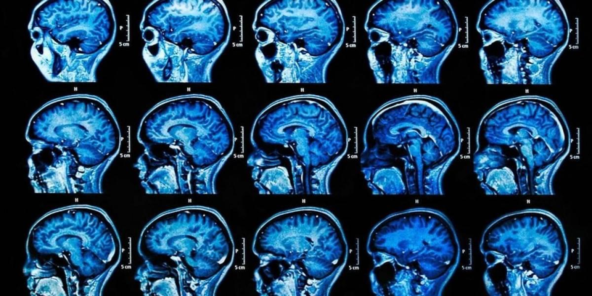 A possível e surpreendente causa para o Alzheimer