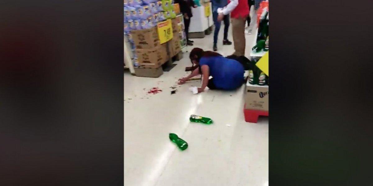 Mujer perdió tres piezas dentales: indignación en redes sociales por agresión de guardia a clienta embarazada al interior de supermercado de Temuco