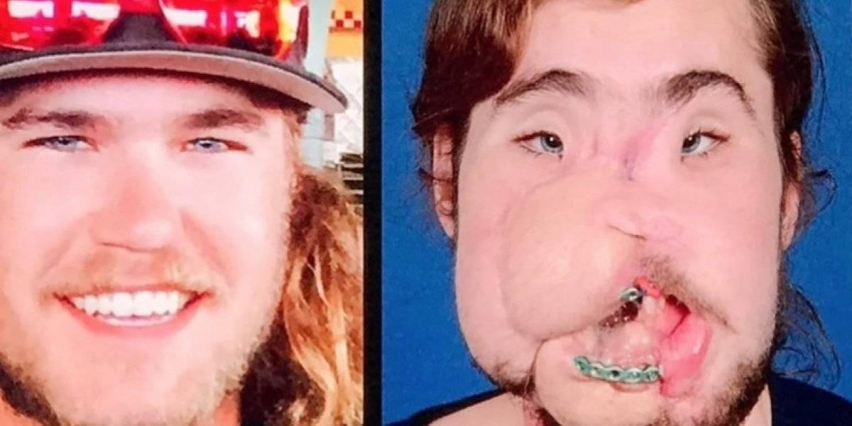 Así quedó el rostro de un joven que intento suicidarse luego de un transplante