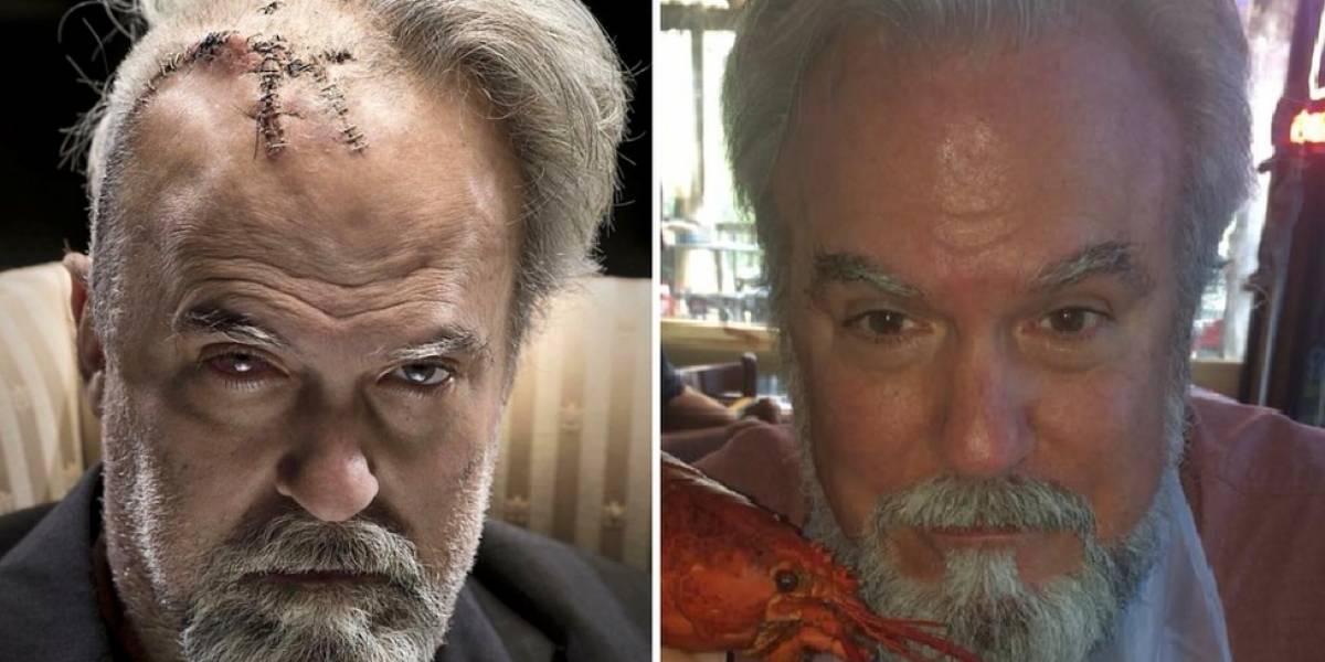 """O fotógrafo que ajudou o pai a se recuperar após cirurgia o transformando em """"vilão de James Bond"""""""