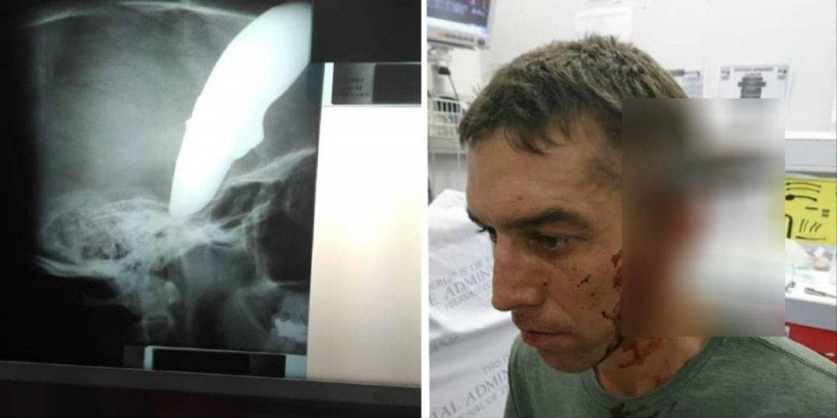 Este tipo se fue en bicicleta al doctor con un cuchillo en la cabeza
