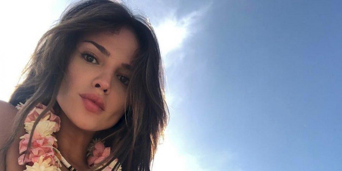 Destrozan a Eiza González por exceso de botox