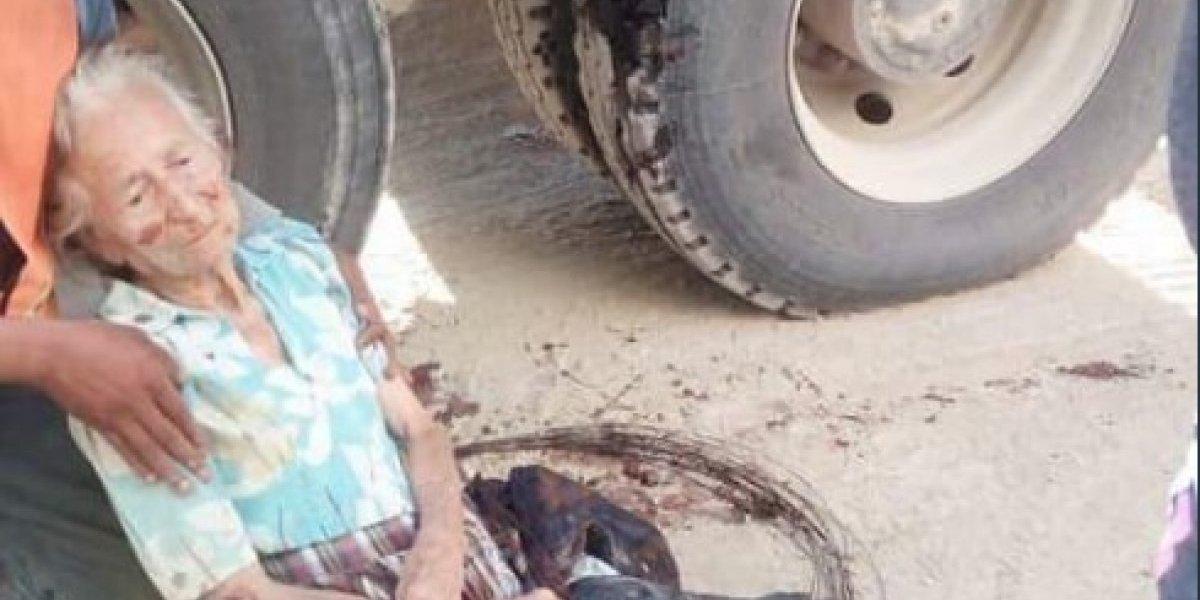 Fallece abuelita a quien le amputaron las piernas tras ser arrollada por camión