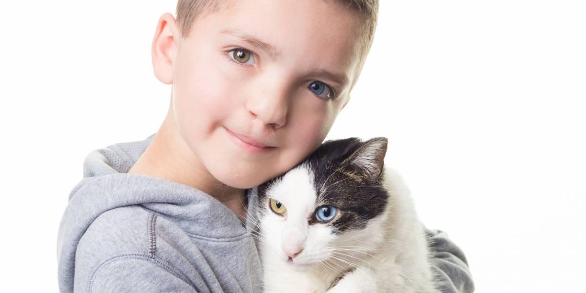 Menino com 'um olho de cada cor' sofre bullying e adota gato com mesma alteração genética
