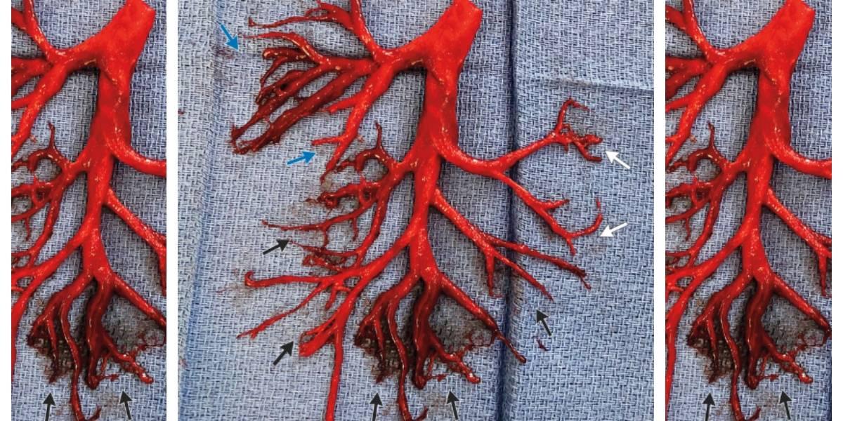 Tosió parte de un pulmón mientras era tratado por una insuficiencia cardíaca crónica y murió una semana después