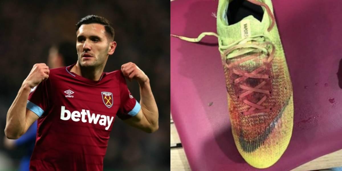 Lucas Pérez muestra lesión en su pie tras duelo con el West Ham