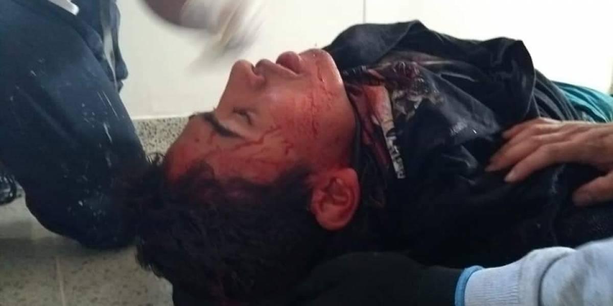 Estudiante de la Universidad del Cauca resultó gravemente herido por el Esmad