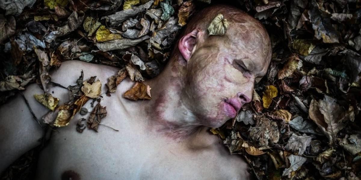 """""""Renasci das cinzas"""": a incrível história de Lyosha, o menino que o pai atirou em um forno aceso"""