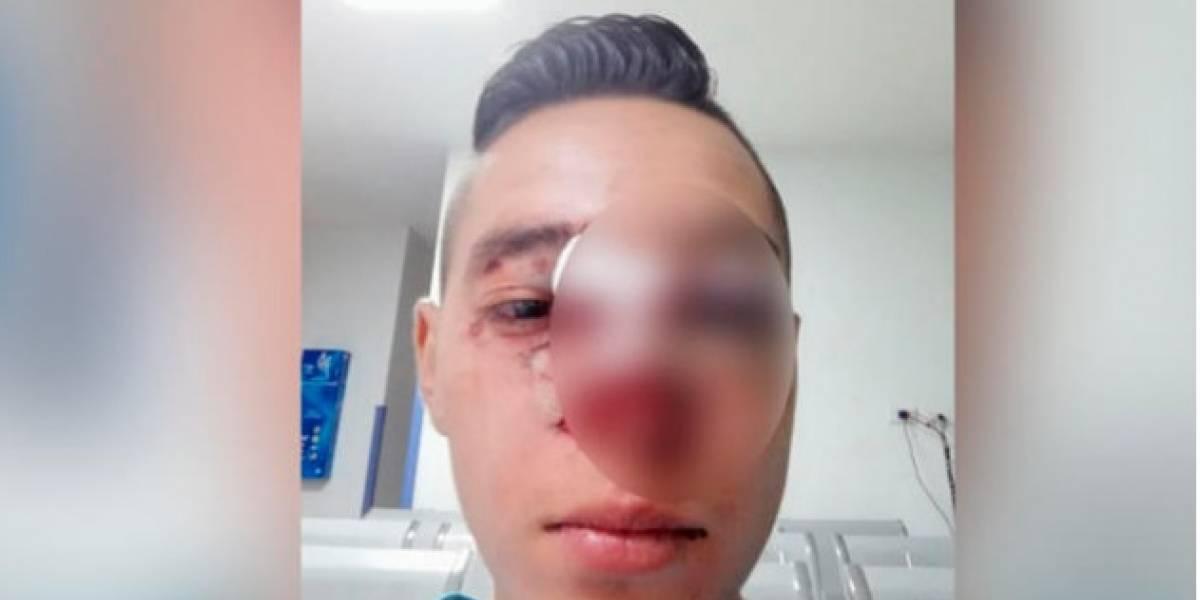 "La brutal golpiza que recibió un joven luego de llamar ""tombo"" a un Policía en Bogotá"