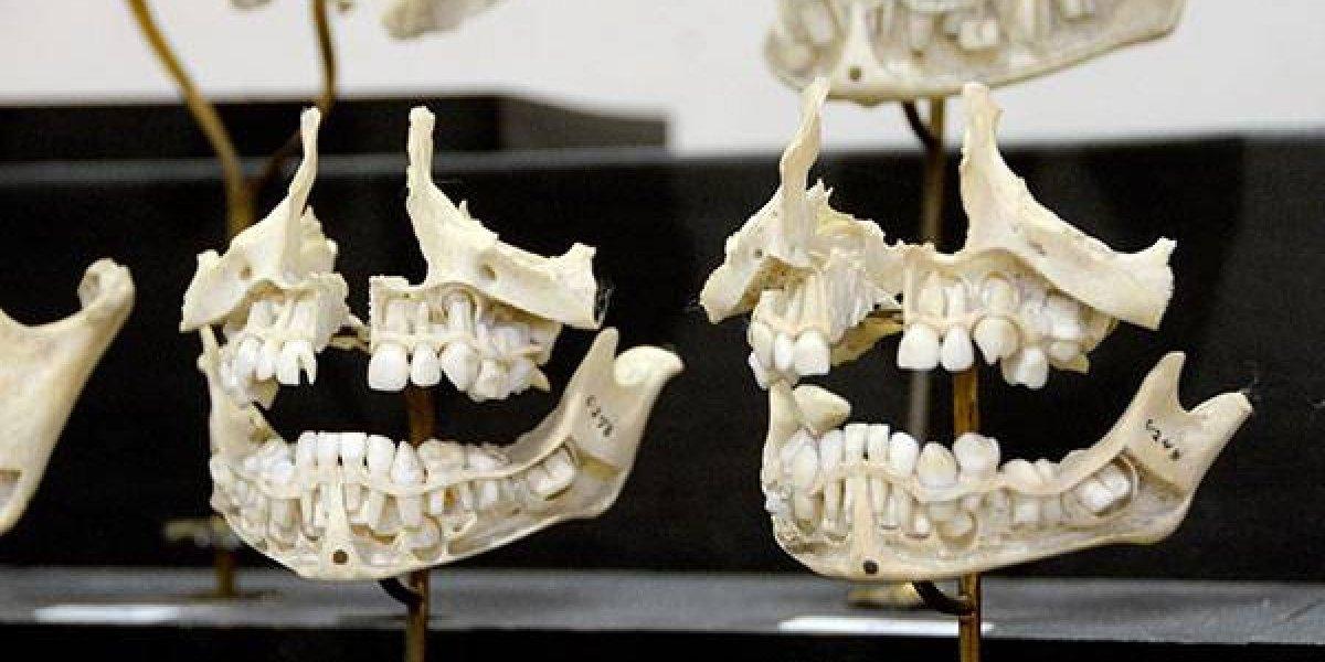 UNAM trabaja en colección odontológica para identificación de cuerpos