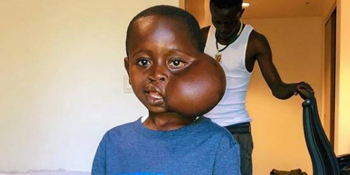 Niño de 8 años fue de África a EEUU para que le extirparan un tumor facial pero murió tras una extraña reacción alérgica a la anestesia