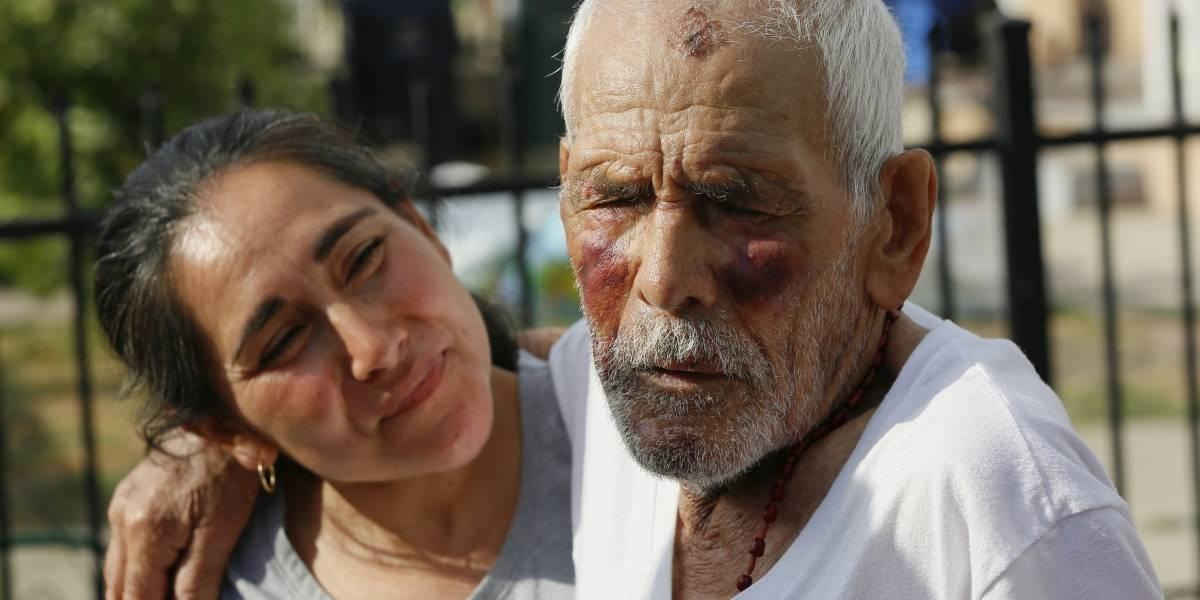 Mujer golpea a anciano de 92 años con un ladrillo