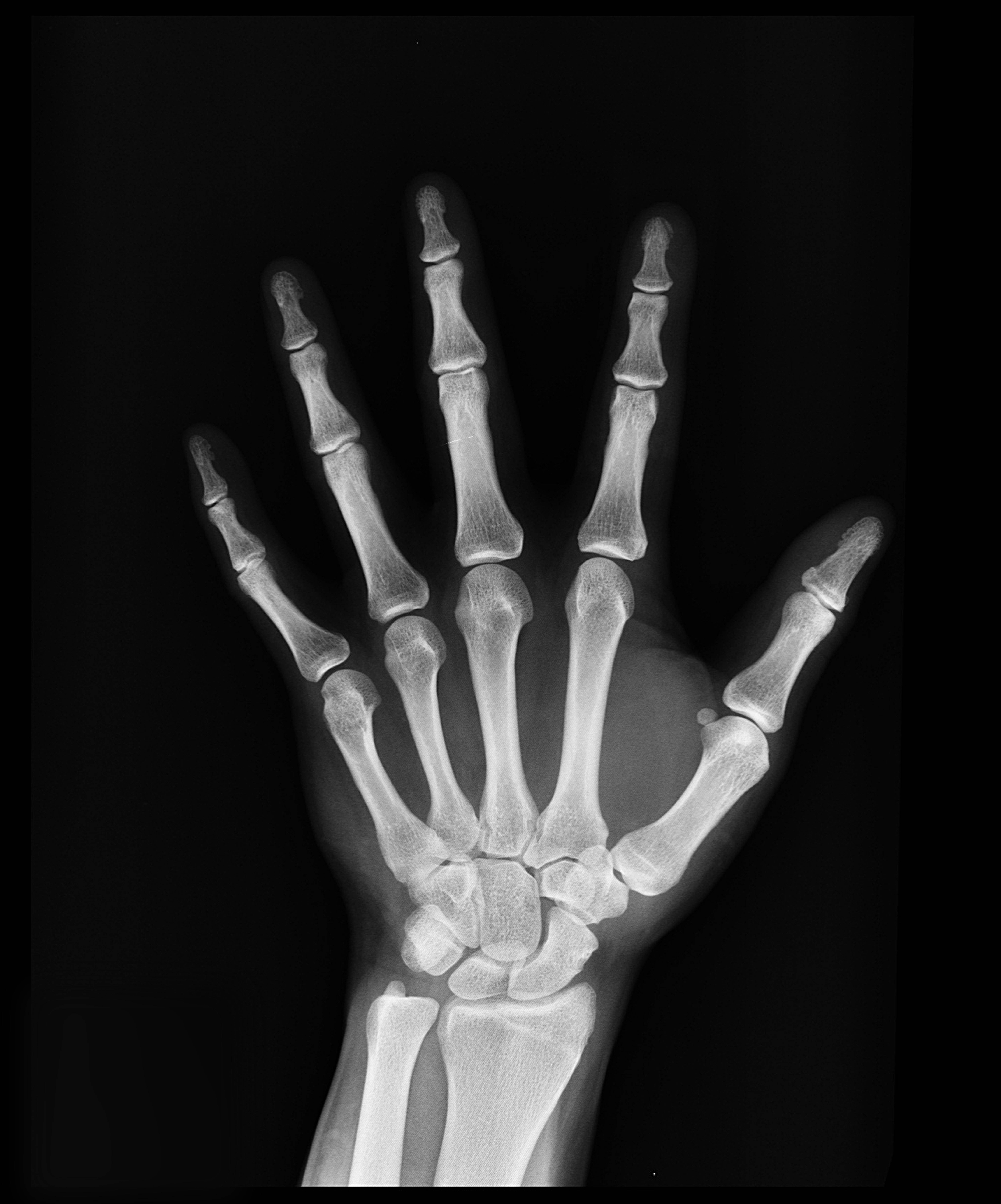 Científicos confirman que en la actualidad los niños alcanzan la madurez ósea mucho más rápido que antes