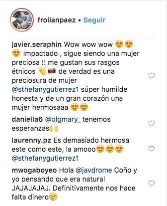 Reacciones en redes tras fotos de Miss Venezuela antes de las cirugías