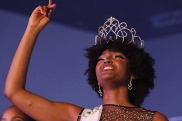 A reina de belleza se le incendia el cabello en concurso Miss África