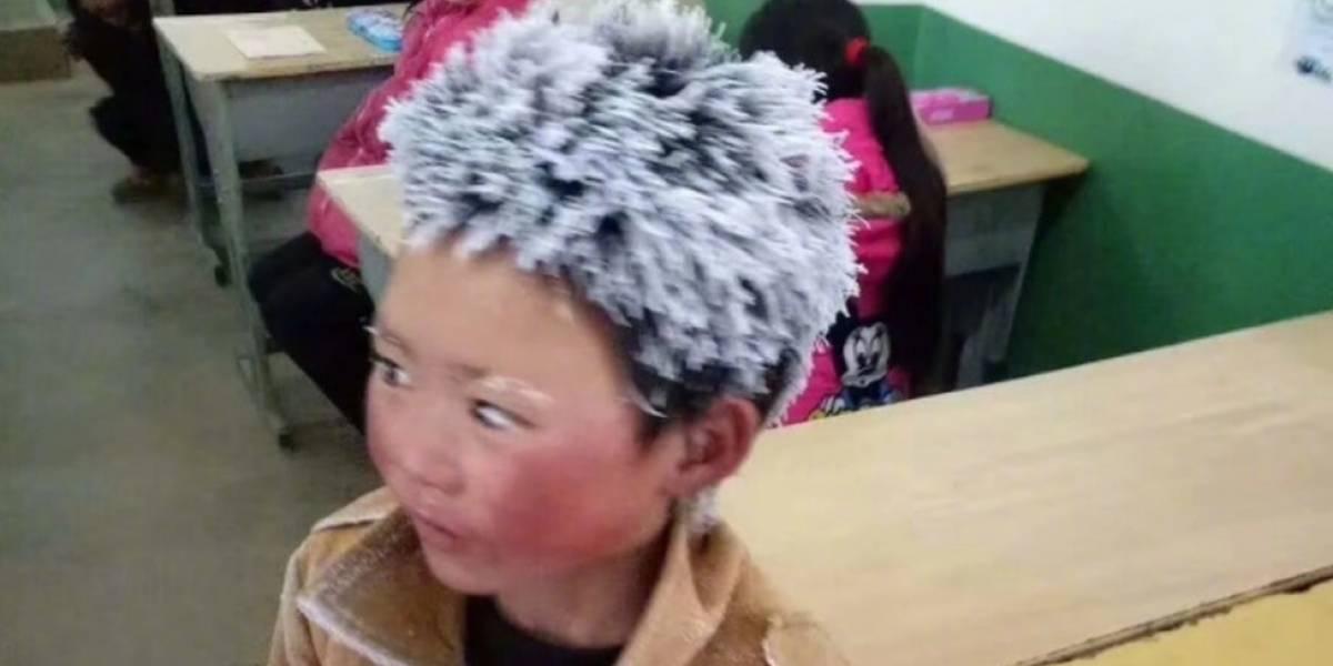 """O que aconteceu com o """"menino de cabelo congelado"""" que se tornou símbolo da pobreza na China"""
