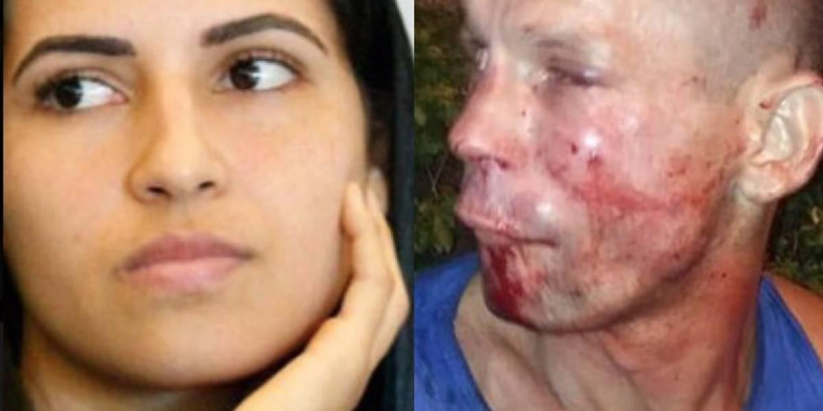 Le quiso robar el celular a una luchadora del UFC y terminó con el rostro desfigurado