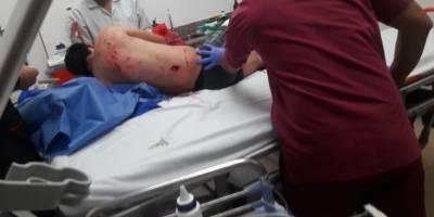 Un policía muerto y dos heridos tras operativo antinarcóticos