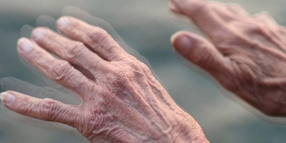 """¡Alarmante! Científicos dicen que habrá una """"pandemia"""" de Parkinson en 2040"""
