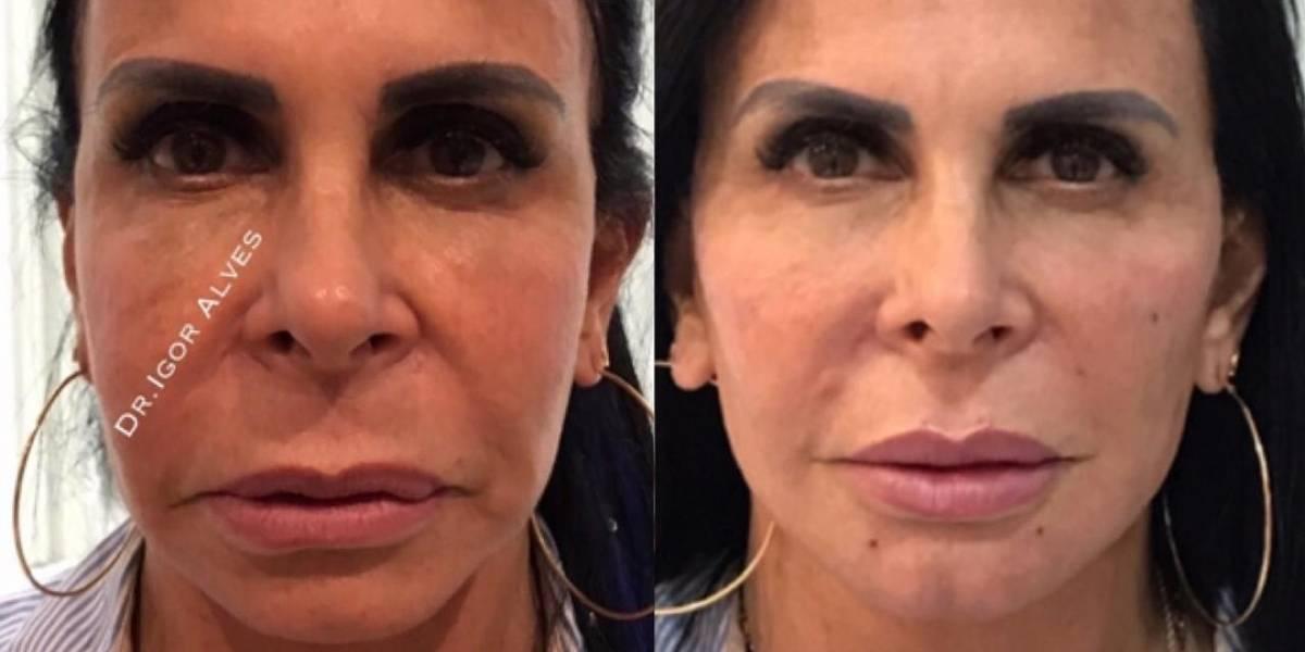 Gretchen comemora harmonização facial