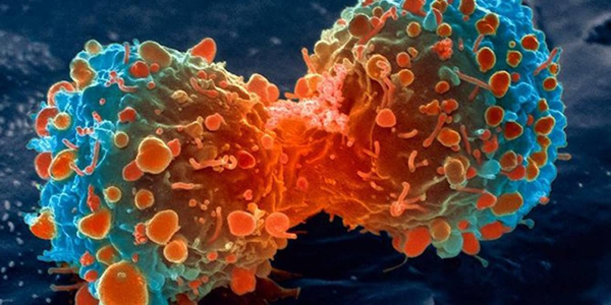 Estos son los tipos de cáncer con mayor incidencia en Ecuador, según OMS
