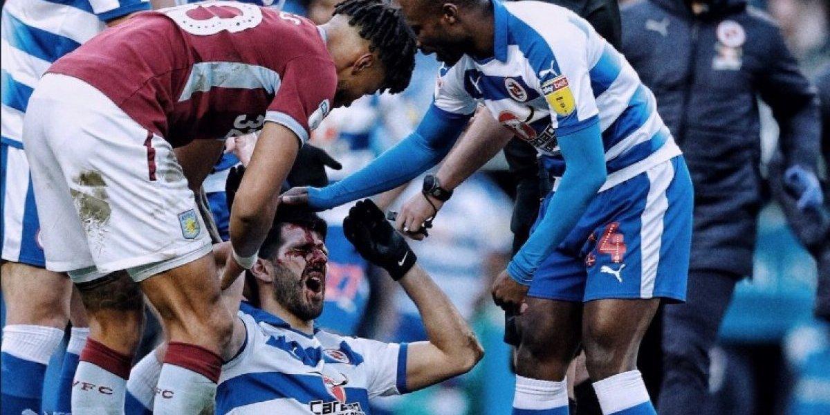 VIDEO. Futbolista recibe pisotón en el rostro y sufre lesión impresionante