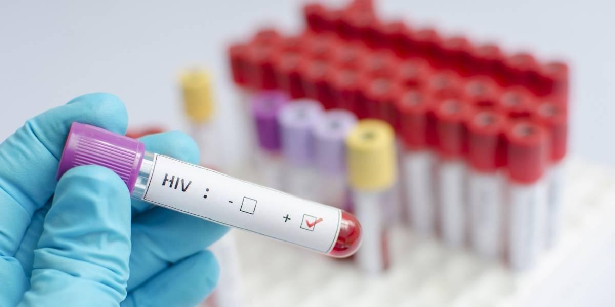 VIH sigue aumentando en Chile y llega a cifra récord