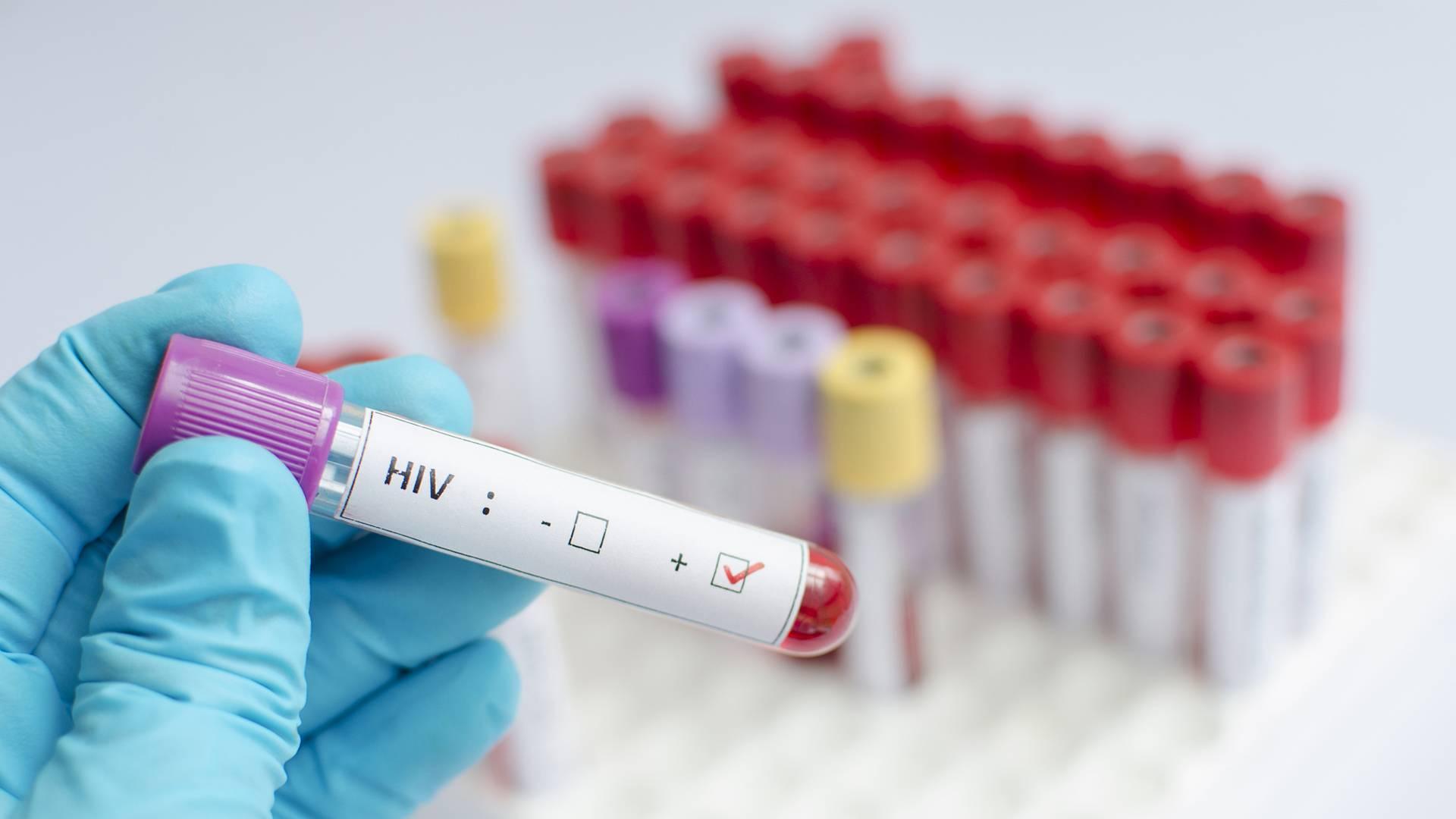Estudio científico comprueba que ciertos medicamentos detienen la transmisión de la enfermedad del Sida