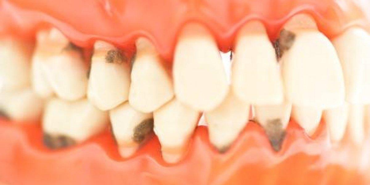 Literalmente podridos: la desagradable consecuencia que sufrió en sus dientes joven que tomó 6 latas de energizantes diarias por 6 meses