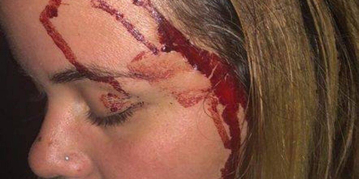 Mujer relata momentos de terror durante robo en Río Piedras