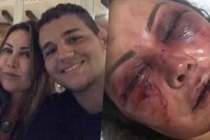 Mãe de Rayron Gracie é espancada por quatro horas no primeiro encontro
