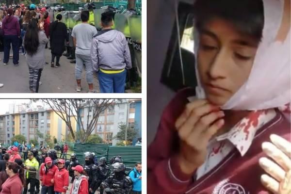 niño denuncia que la policía lo agredió en protesta contra tala de árboles en Bogotá