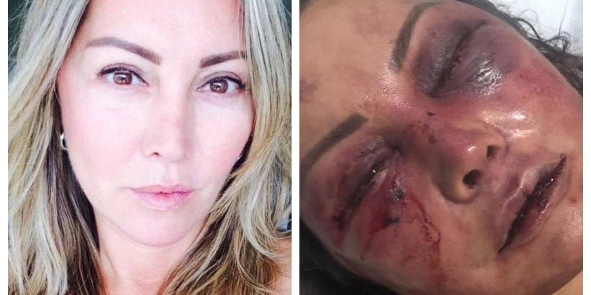 Se conocieron por redes sociales y en la primera cita le dio una brutal golpiza durante 4 horas