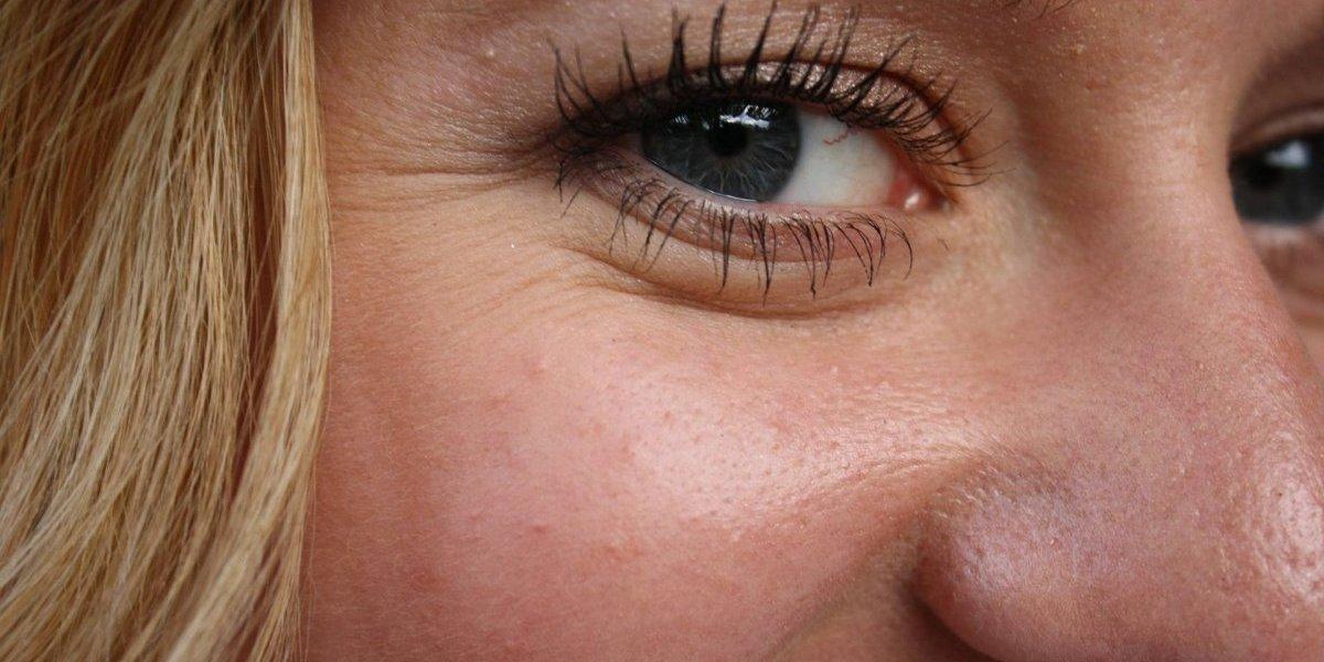 Cuidado com as rugas! Estas são as 5 formas de identificar marcas de estresse na pele