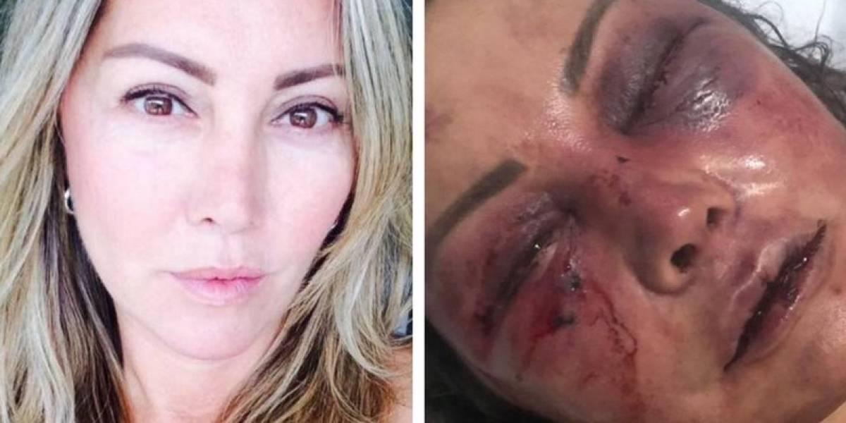 Se conocieron por redes sociales y en la primera cita le dio una brutal golpiza