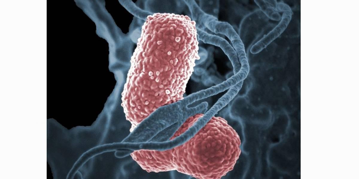 Superbactéria circulou no Brasil antes de ser descrita pela China