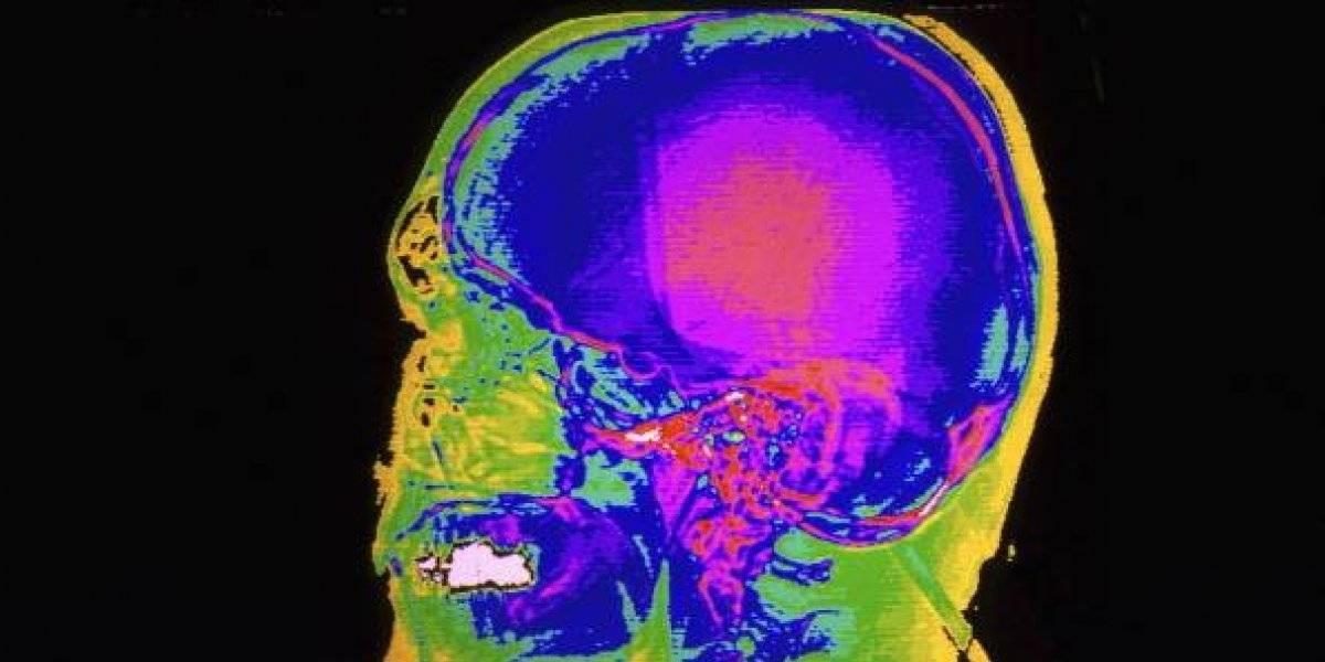 """Científicos aseguran que en 5 años el ser humano alcanzará la """"super inteligencia"""" a través del hackeo cerebral"""