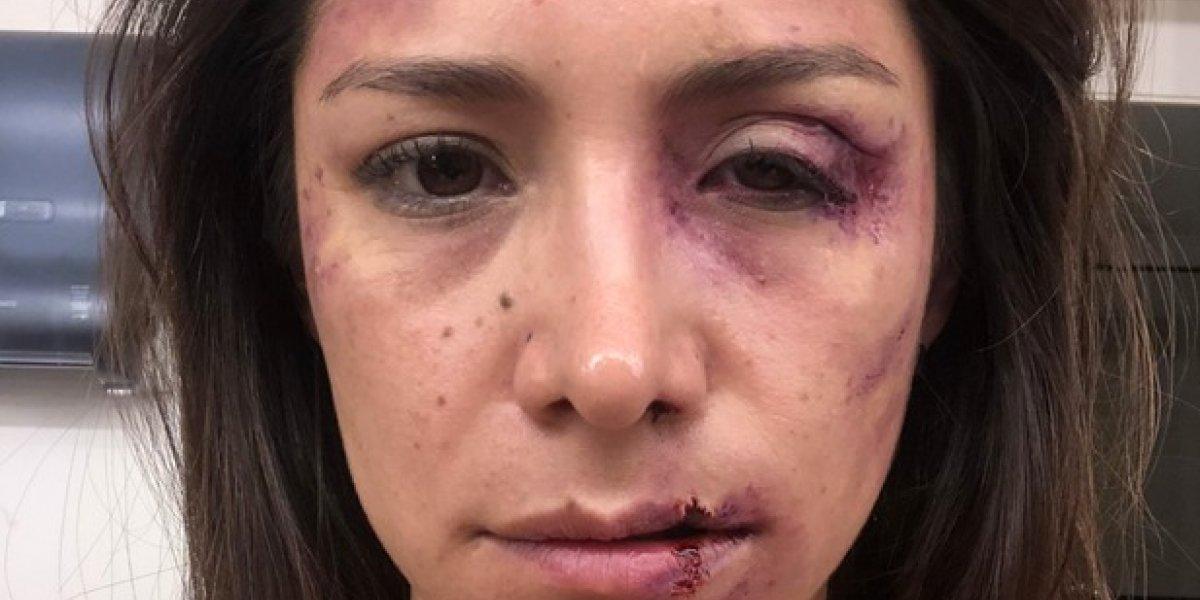 """Loreto Aravena: """"Lo que se viene para Josefa es peor que la muerte"""""""