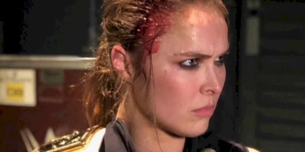 Ronda Rousey casi pierde un dedo filmando un programa de television