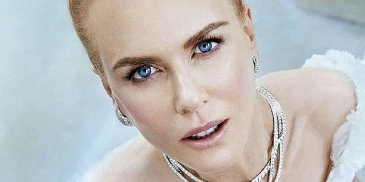 """El remake de """"Cruella De Vil"""" ya es oficial: Nicole Kidman sería una de sus protagonistas"""