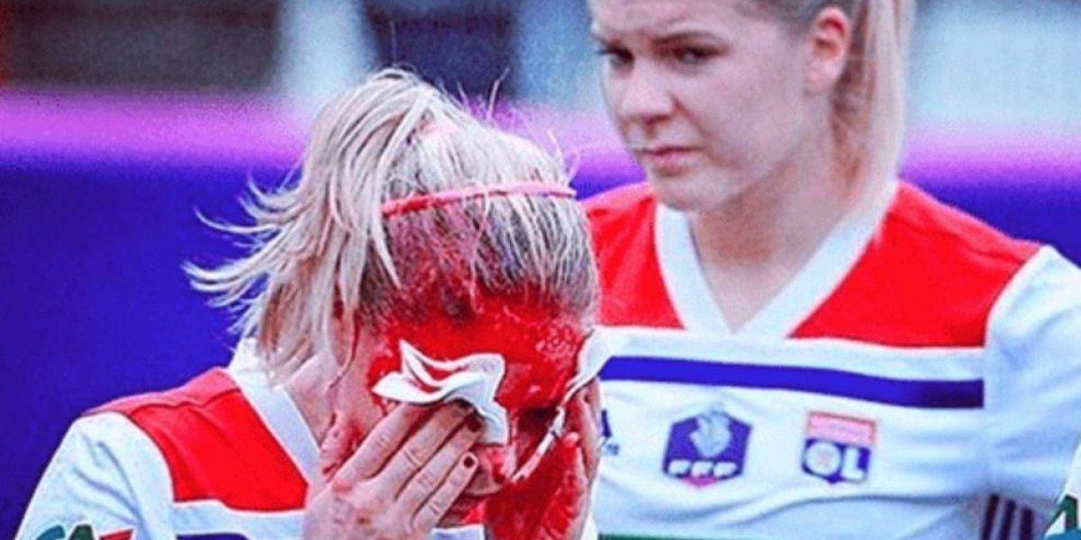 Impresionante herida de futbolista francesa Eugénie Le Sommer