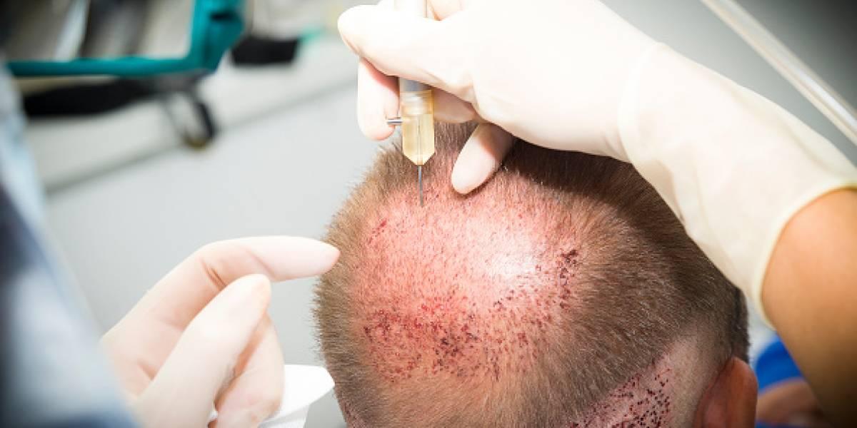 Quería ocultar su calvicie: hombre se somete a implante de cabello y muere tras sufrir reacción alérgica